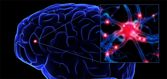 Carr II, nuestro cerebro es plástico